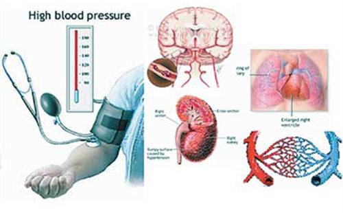高血压 损害身体.jpg
