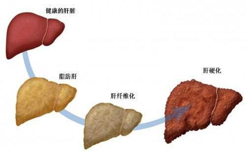 脂肪肝是因为吃了太多油脂吗?