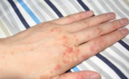 皮肤瘙痒 (2).jpg
