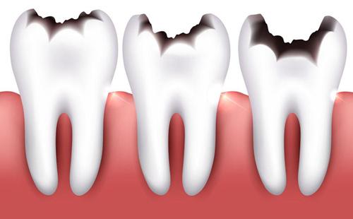 糖尿病为什么要注意口腔卫生?