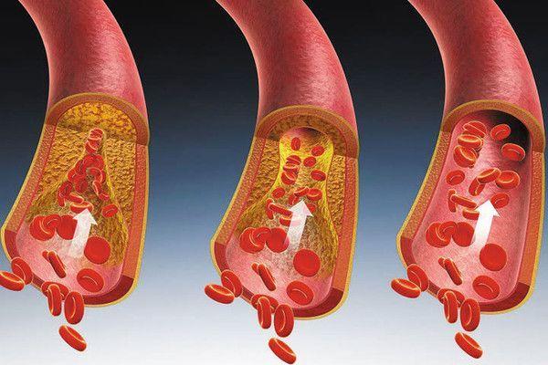什么是糖尿病的微血管病变?