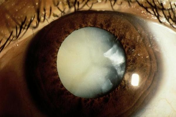 糖尿病有哪些眼部并发症?