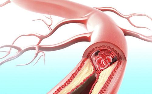 血管 堵塞.jpg
