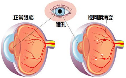 眼睛 视网膜病变.jpg