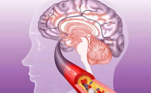 脑 血栓 (3).jpg