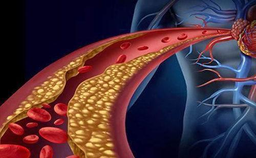 血管 血脂 (4).jpg