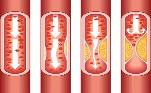 血管 堵 (5).jpg