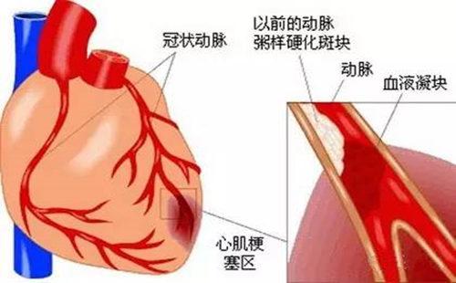 心肌梗塞.jpg